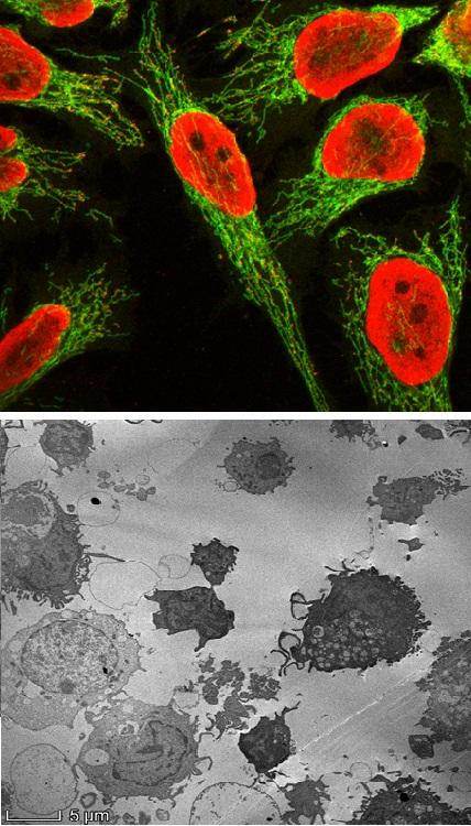 16º Corso di Microscopia Confocale e Microscopia Elettronica a Trasmissione